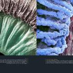 Iris ; iris et corps ciliaire
